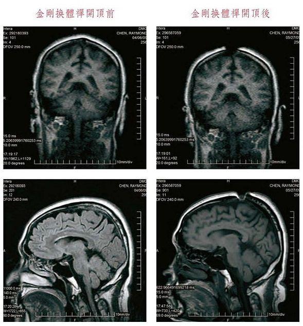 祿東贊法王修境行法「金剛換體禪」前後,MRI核磁共振儀腦斷層掃瞄檢測照片